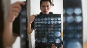 Selama 4 Tahun Pria Ini Gemar Minum Deterjen Pencuci Pakaian